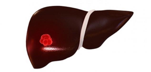 瑞格非尼顯著提高肝癌患者壽命